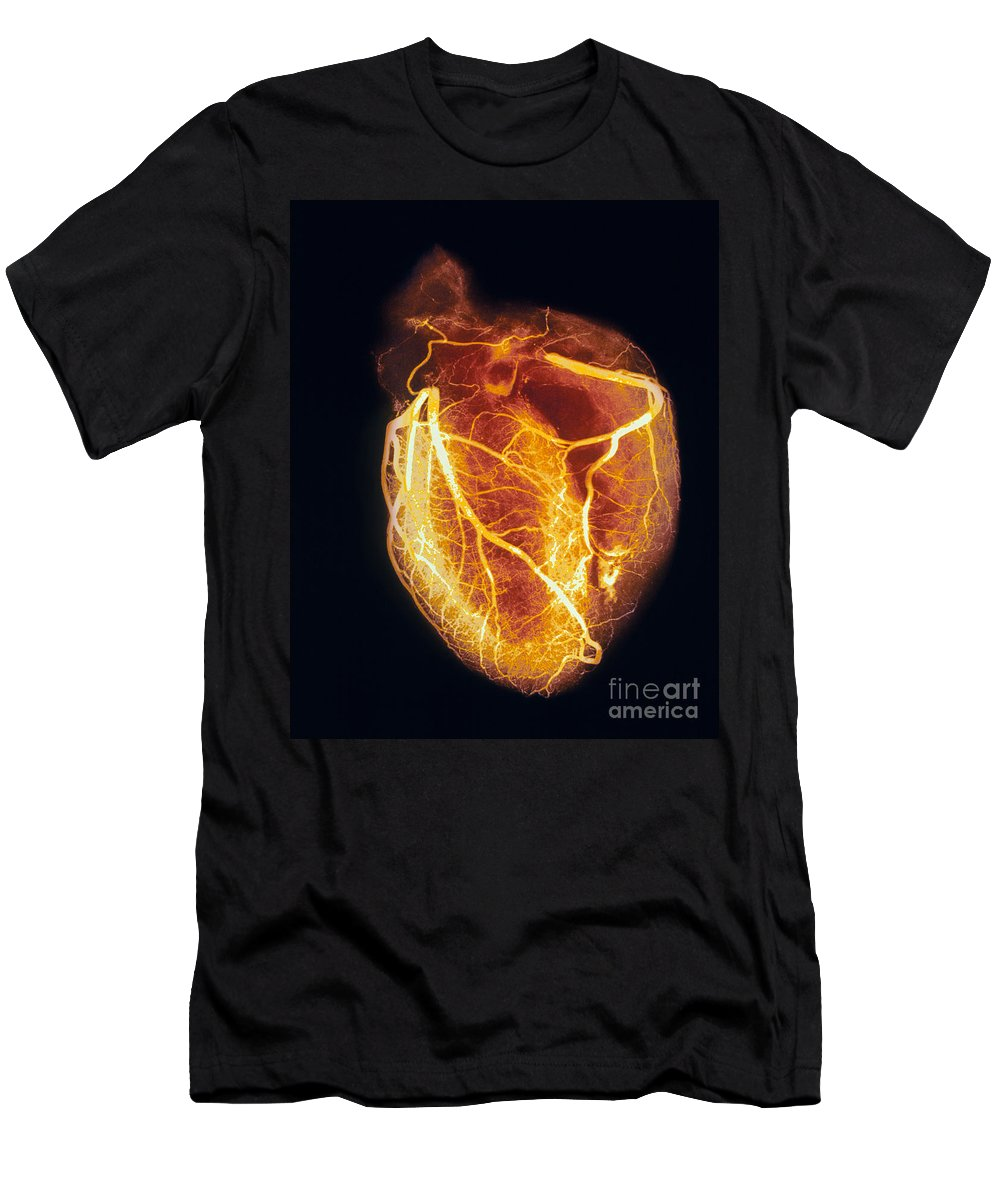 Angiogram Men's T-Shirt (Athletic Fit) featuring the photograph Colored Arteriogram Of Arteries Of Healthy Heart by Spl