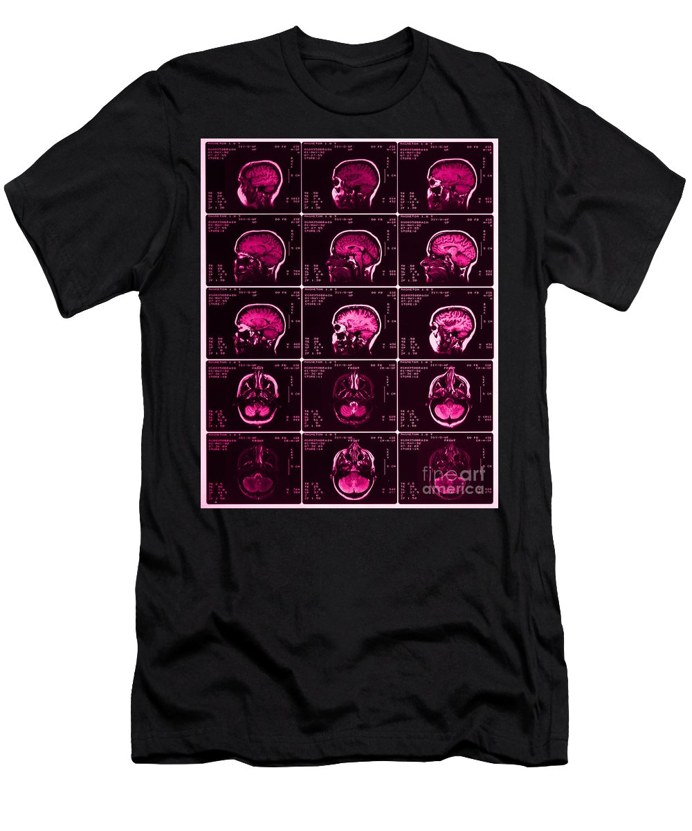 Brain Men's T-Shirt (Athletic Fit) featuring the photograph Mri Of Normal Brain by Science Source