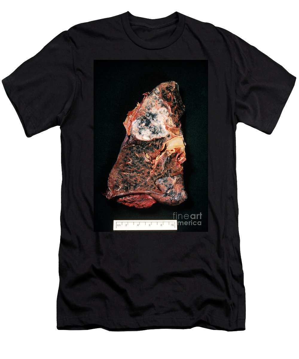Cancer Men's T-Shirt (Athletic Fit) featuring the photograph Lung Cancer by Science Source
