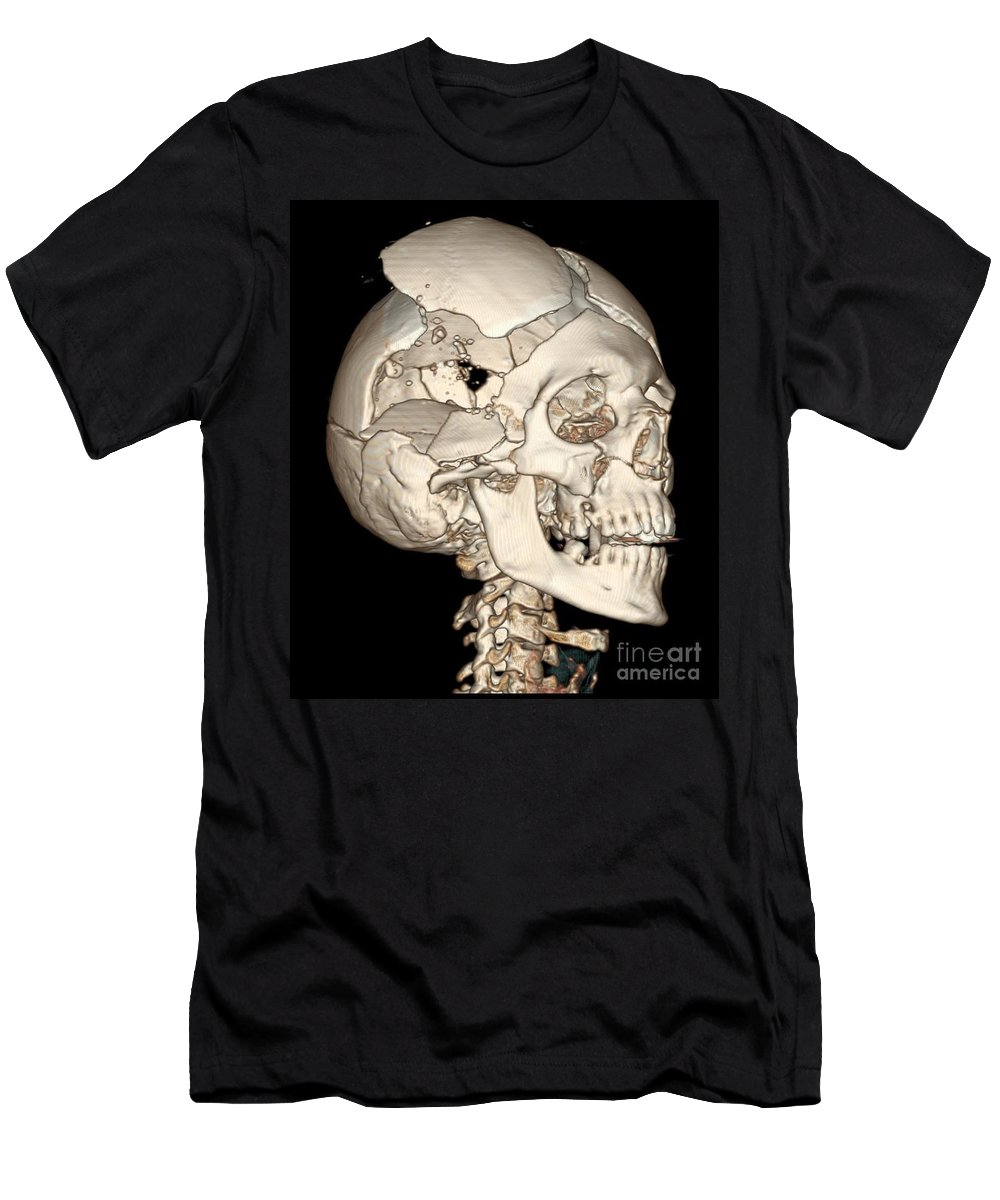 Science Men's T-Shirt (Athletic Fit) featuring the photograph Three-dimensional Ct Reconstruction by Science Source