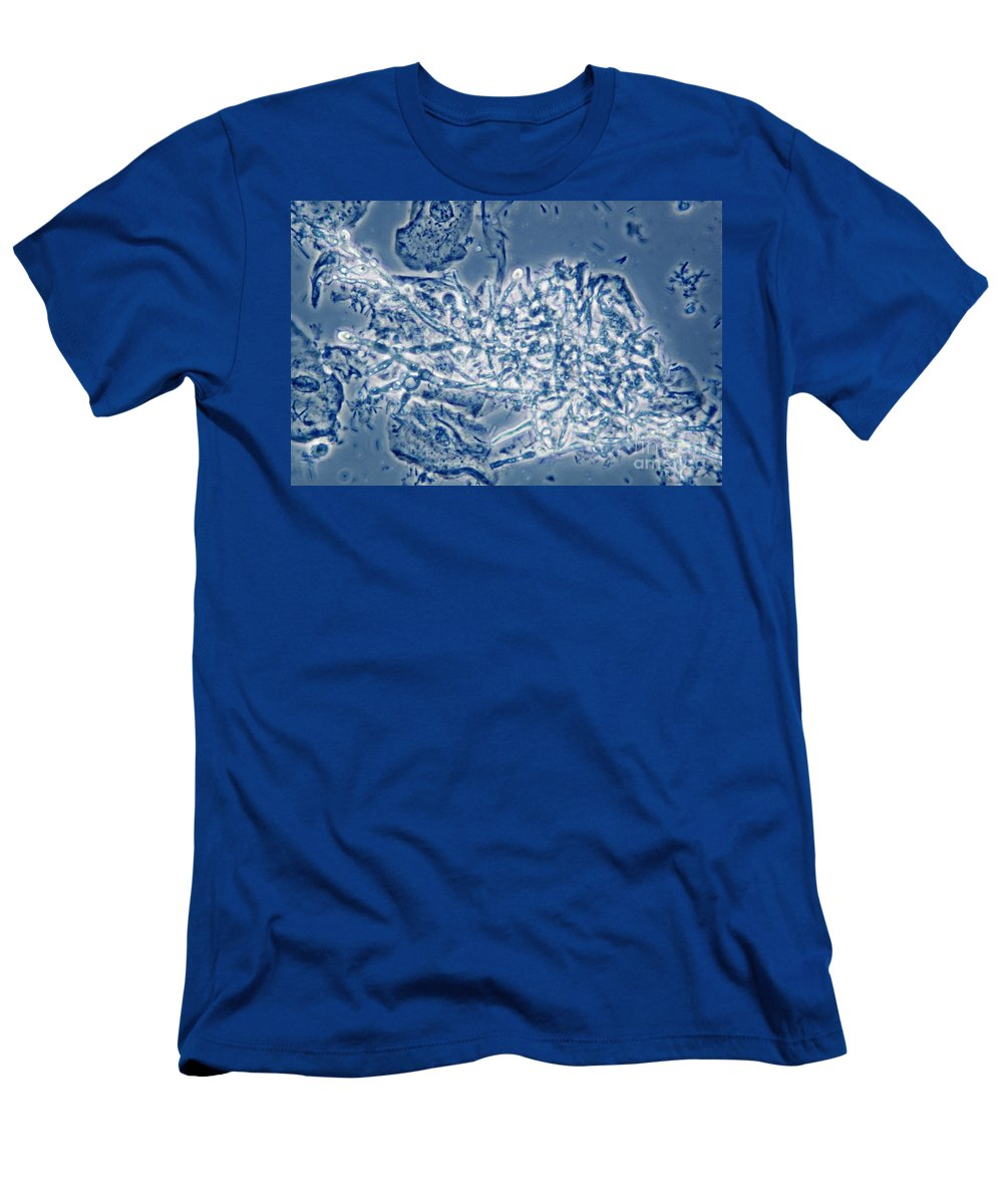 Candida Albicans Men's T-Shirt (Athletic Fit) featuring the photograph 4 Phase Contrast- Candida Albicans by M. I. Walker
