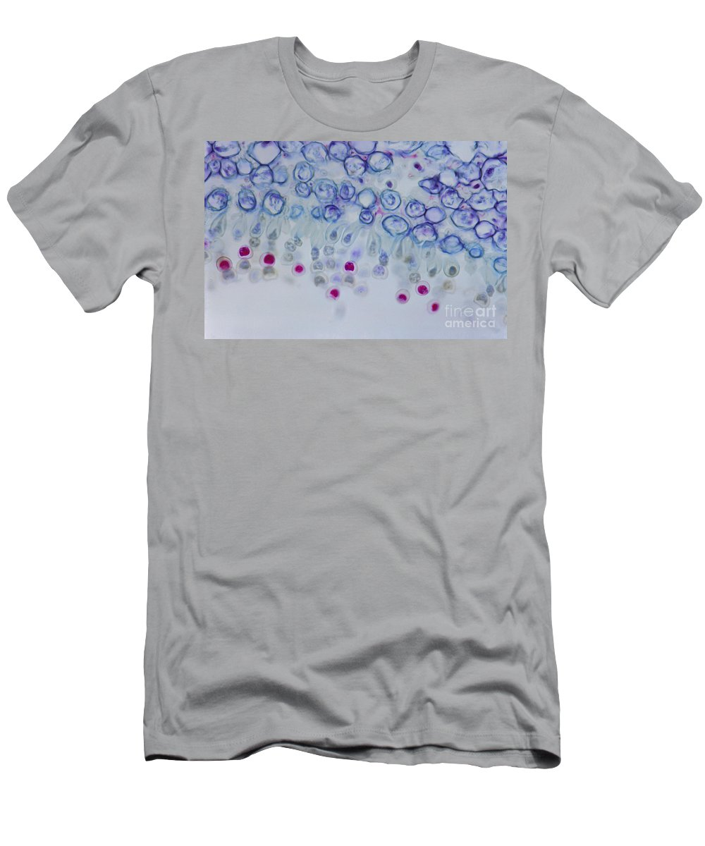 Fungi Men's T-Shirt (Athletic Fit) featuring the photograph Conidia On Host by M. I. Walker