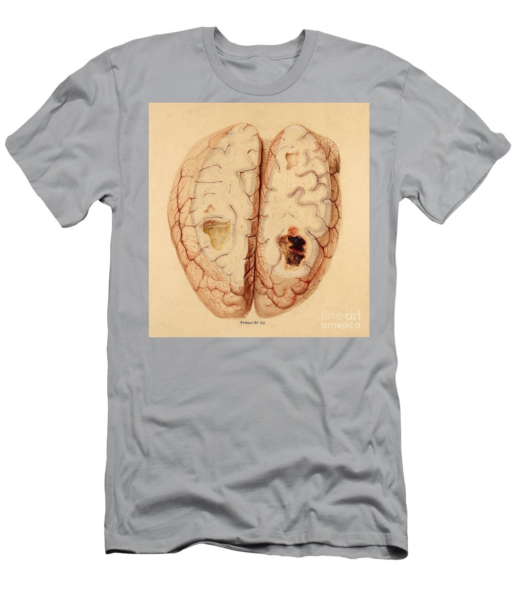 Historic Men's T-Shirt (Athletic Fit) featuring the photograph Extravasated Blood, Brain by Wellcome Images