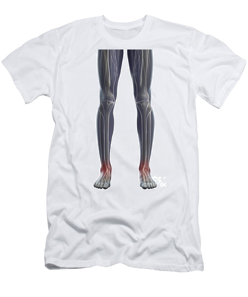 Transparent Skin Men's T-Shirt (Athletic Fit) featuring the photograph Nerves Of The Legs by Science Picture Co