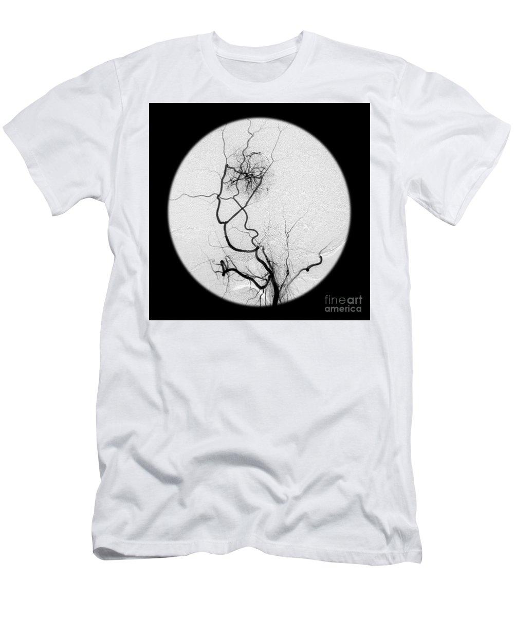External Carotid Artery T Shirts Fine Art America