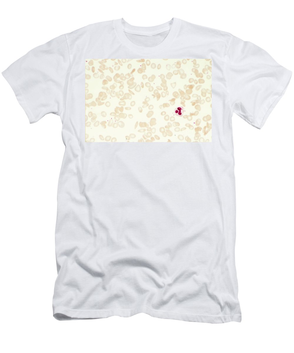 Histology Men's T-Shirt (Athletic Fit) featuring the photograph Sickle Cell Anemia by M. I. Walker