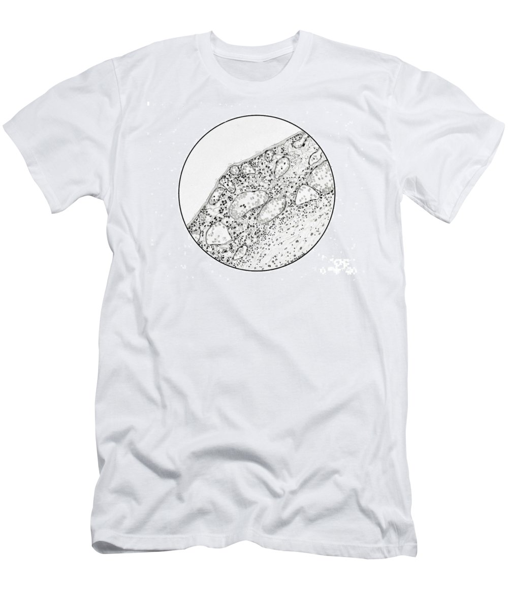 Historic Men's T-Shirt (Athletic Fit) featuring the photograph Congestion In Lungs, 1918 Influenza by Wellcome Images