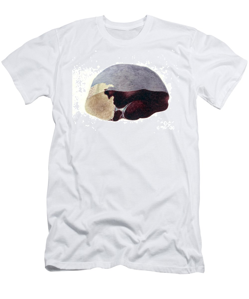 Historic Men's T-Shirt (Athletic Fit) featuring the photograph Enlarged Spleen With Infarct by Wellcome Images