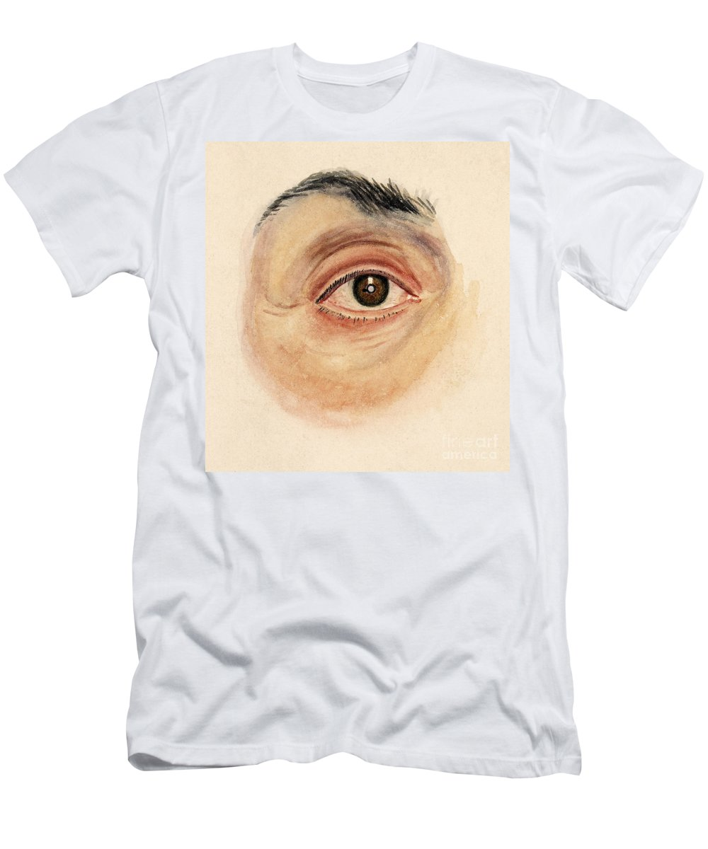 Historic Men's T-Shirt (Athletic Fit) featuring the photograph Melanoma Of Iris, Medical Illustration by Wellcome Images
