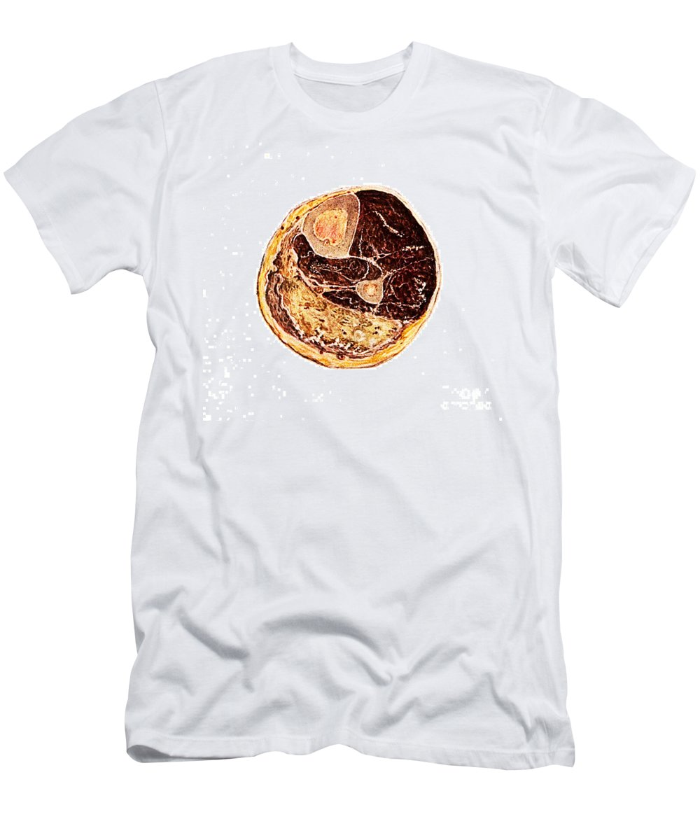 Historic Men's T-Shirt (Athletic Fit) featuring the photograph Muscle Degeneration, Fibrosis And Fat by Wellcome Images