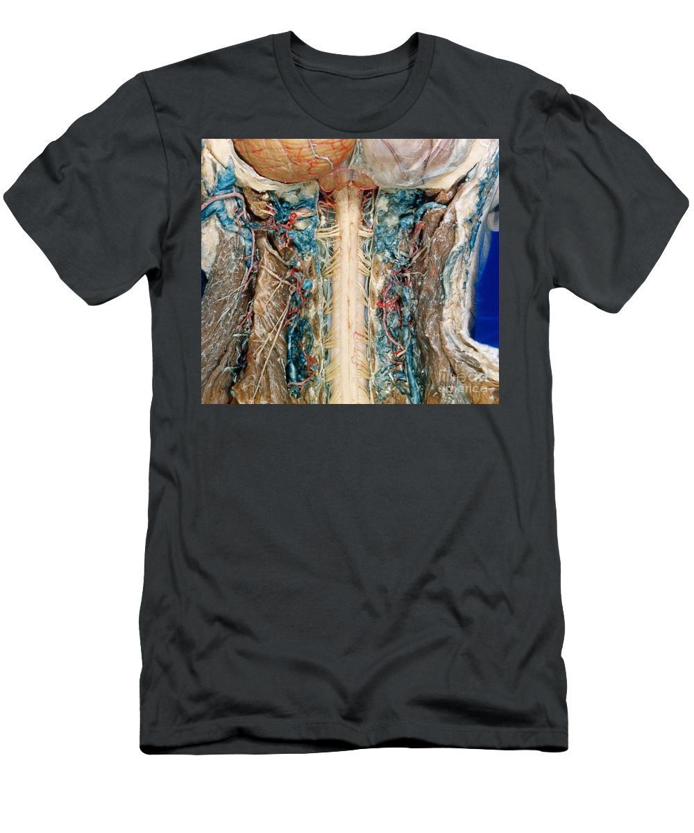 Anatomy Men's T-Shirt (Athletic Fit) featuring the photograph Cervical Spinal Cord, Posterior View by VideoSurgery