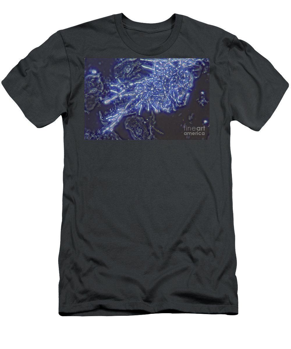 Ascomycete Men's T-Shirt (Athletic Fit) featuring the photograph Lm Of Candida Albicans by M. I. Walker