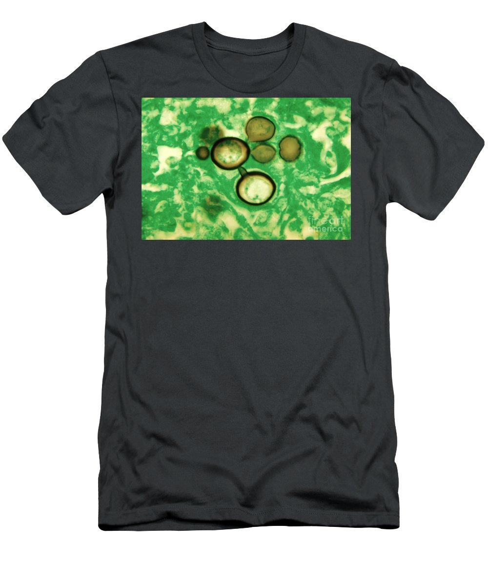 Fungus Men's T-Shirt (Athletic Fit) featuring the photograph Paracoccidioides Brasiliensis by Science Source