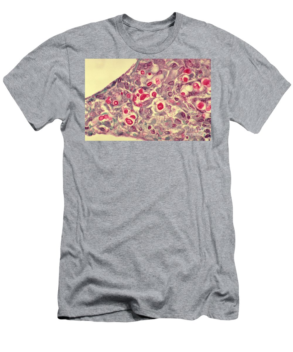Cryptococcus Men's T-Shirt (Athletic Fit) featuring the photograph Cryptococcosis, Lm by Science Source