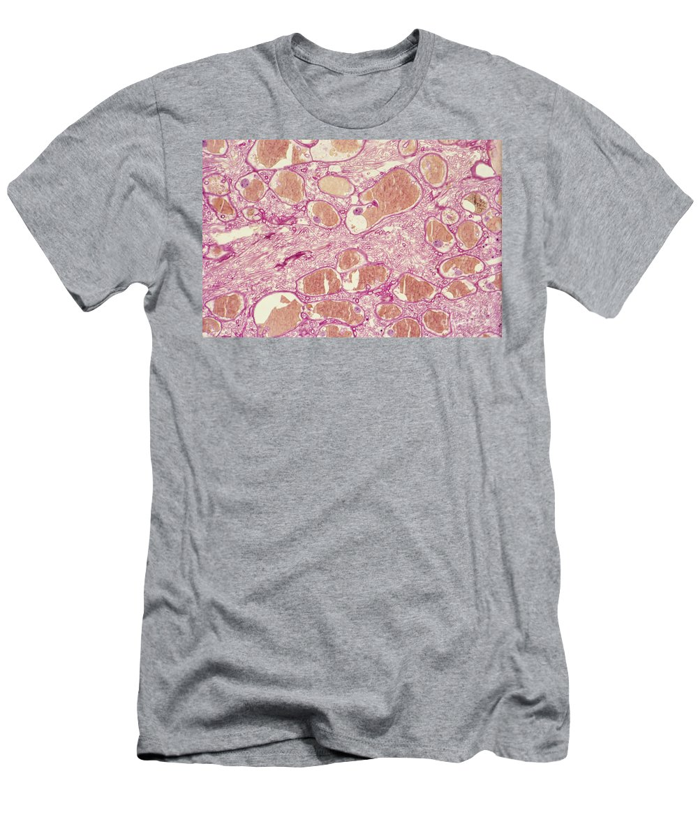 Light Micrograph Men's T-Shirt (Athletic Fit) featuring the photograph Pine Blister Rust by M. I. Walker