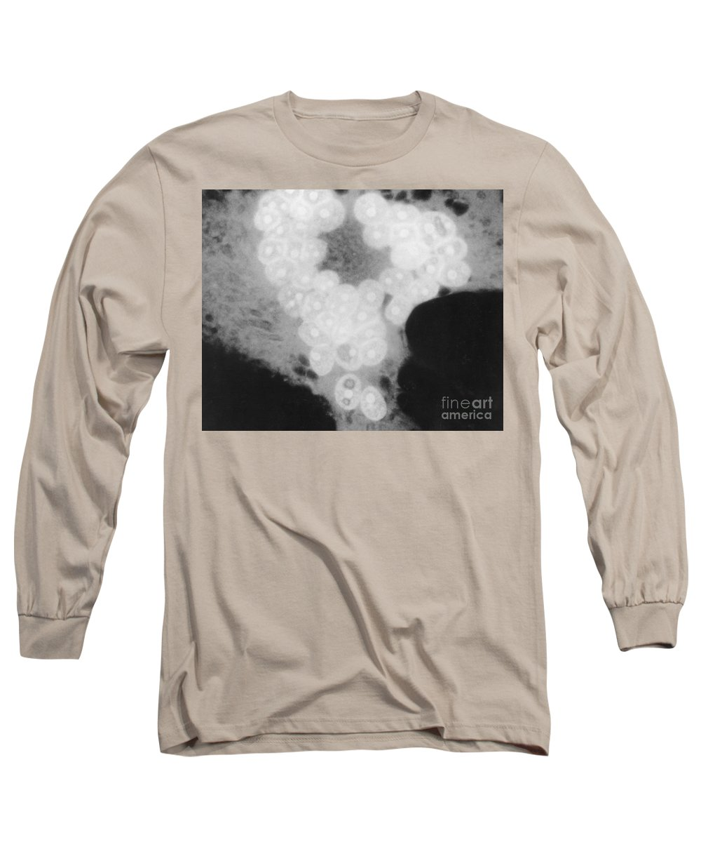 Science Long Sleeve T-Shirt featuring the photograph Measles Virus by Omikron