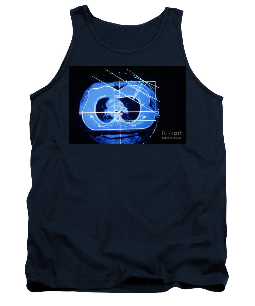 Breasts Tank Top featuring the photograph Mammogram by Science Source