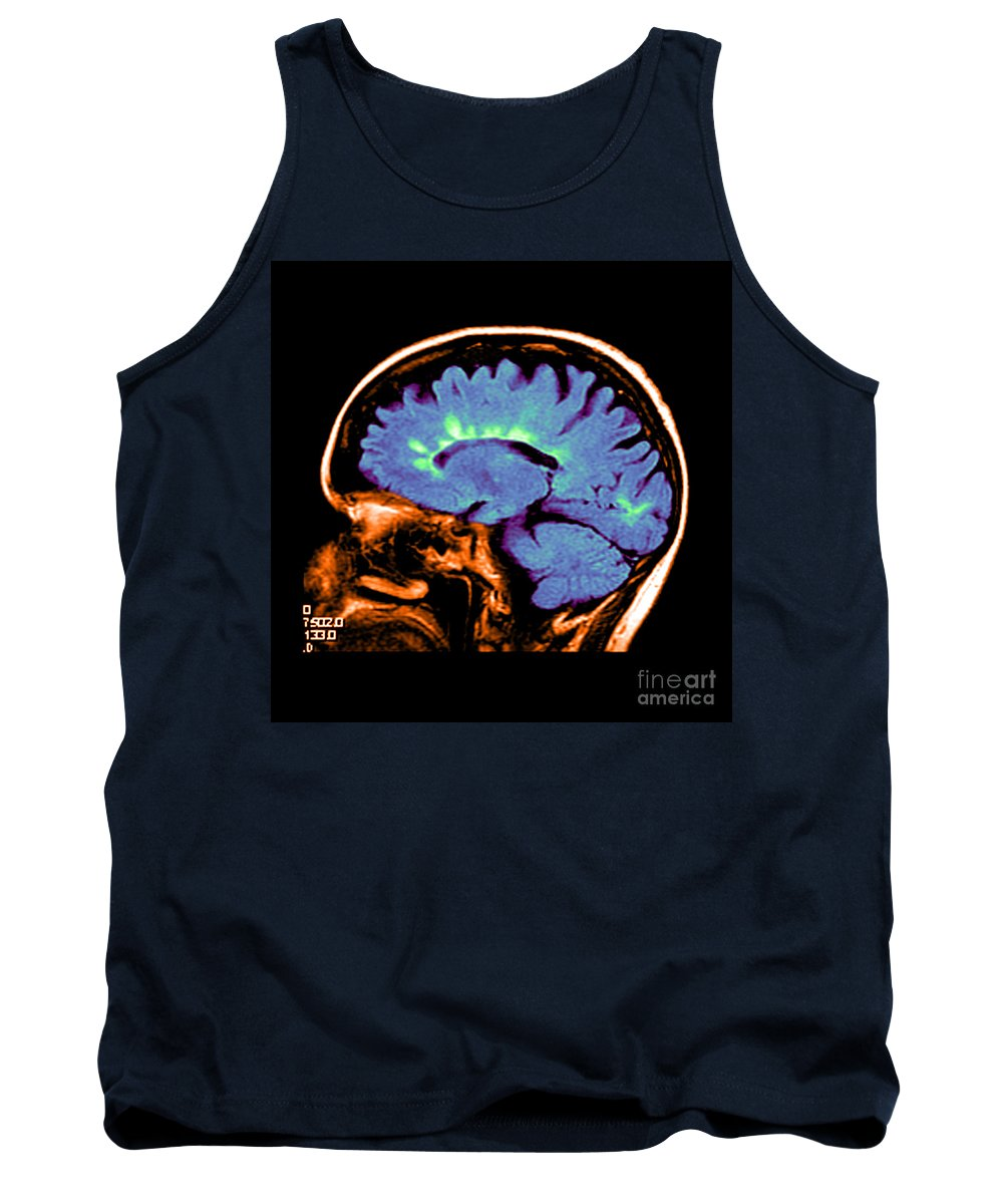 Abnormal Mri Of Brain Tank Top featuring the photograph Mri Of Multiple Sclerosis by Medical Body Scans