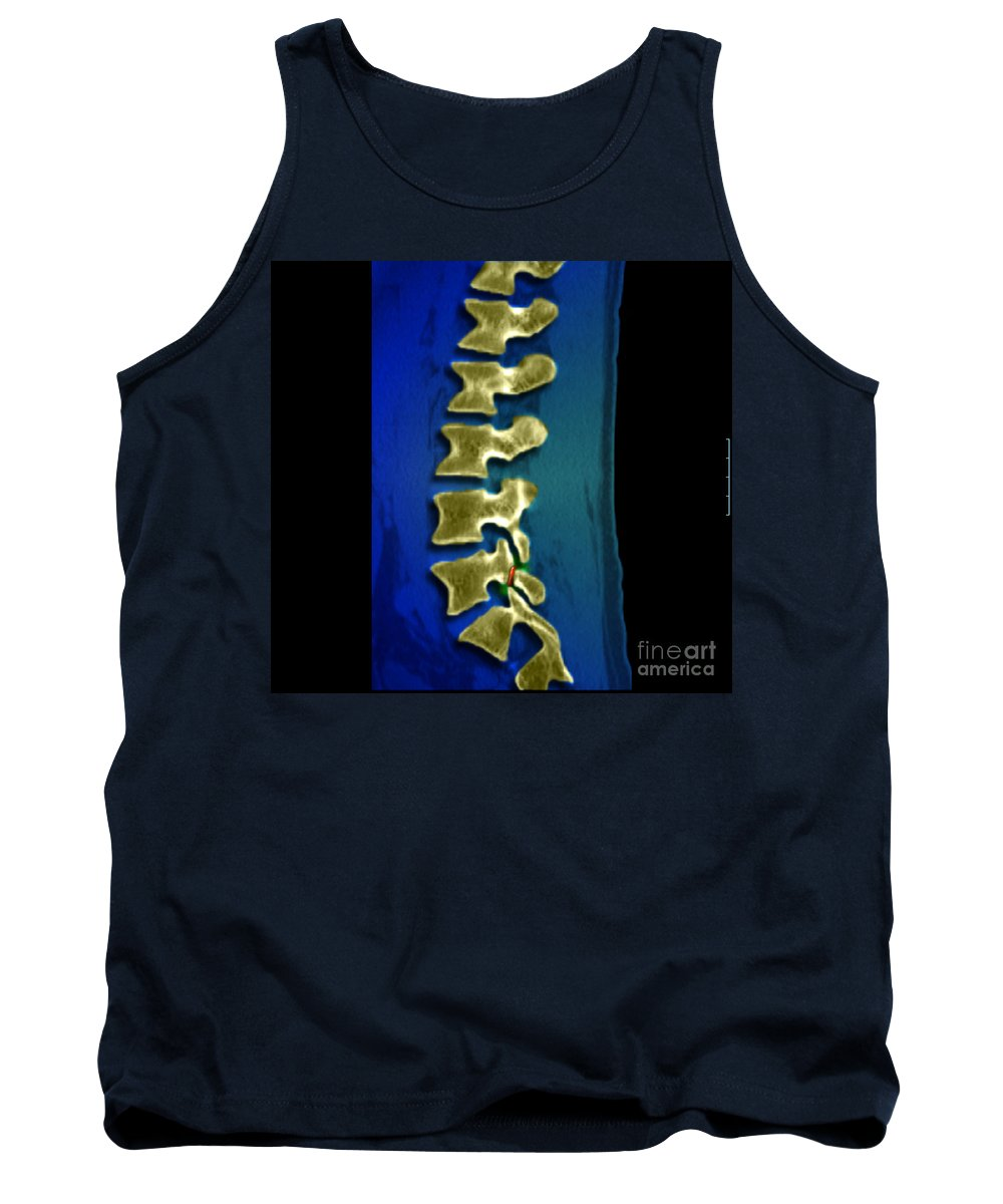 Spondylolysis Tank Top featuring the photograph Spondylolysis by Medical Body Scans