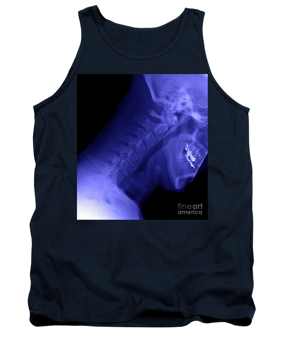 X-ray Tank Top featuring the photograph X-ray Of A Cervical Spine by Ted Kinsman