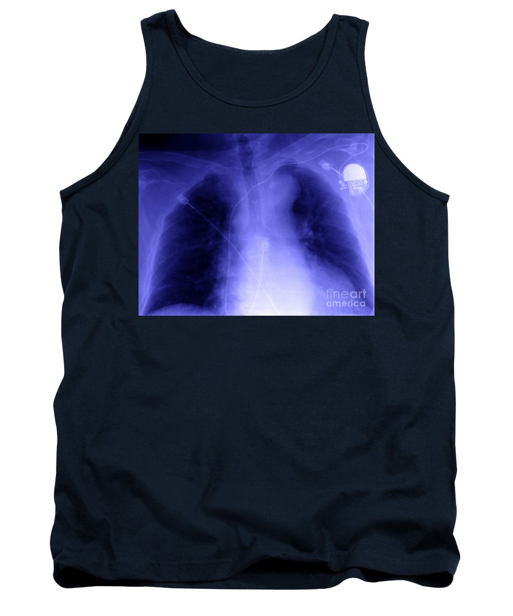 Xray Tank Top featuring the photograph X-ray Of Implanted Defibulator by Ted Kinsman