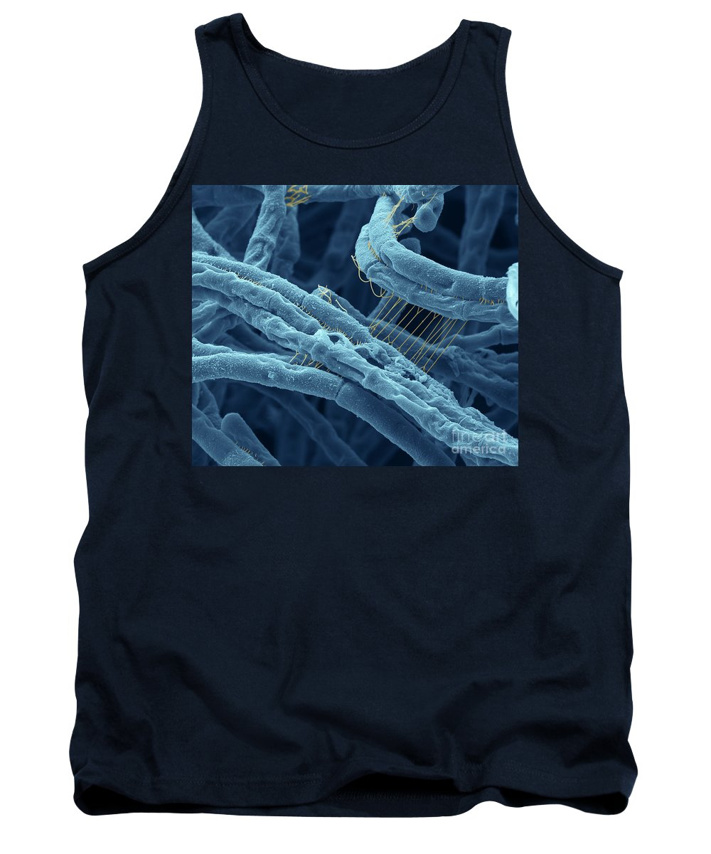 Sem Tank Top featuring the photograph Anthrax Bacteria Sem by Eye Of Science and Photo Researchers