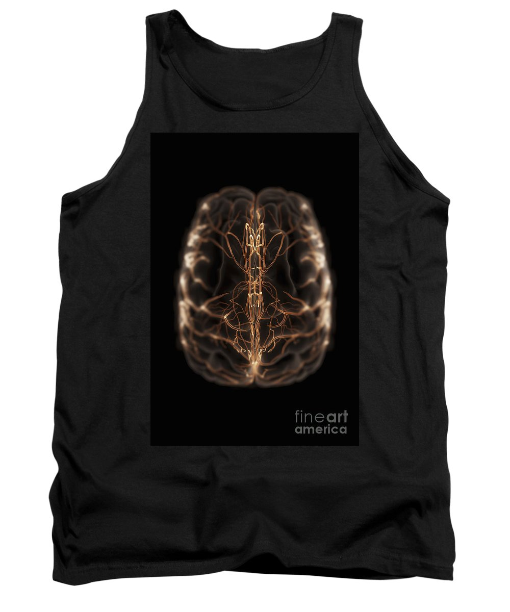3d Visualisation Tank Top featuring the photograph Brain With Blood Supply by Science Picture Co