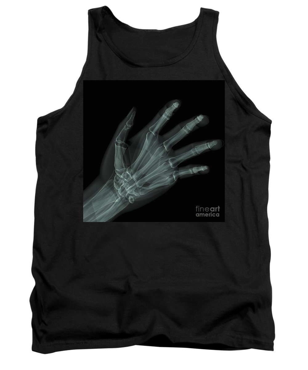 Middle Phalange Tank Top featuring the photograph Bones Of The Hand by Science Picture Co
