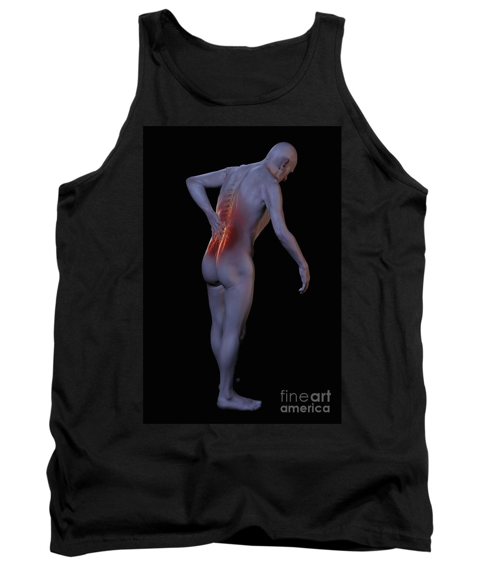 Back Pain Tank Top featuring the photograph Back Pain by Science Picture Co