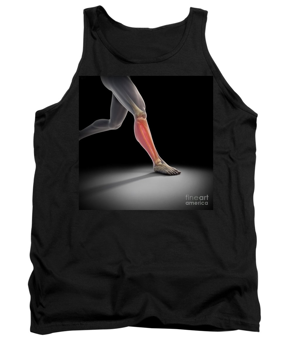 Injure Tank Top featuring the photograph Medial Tibial Stress Syndrome by Science Picture Co