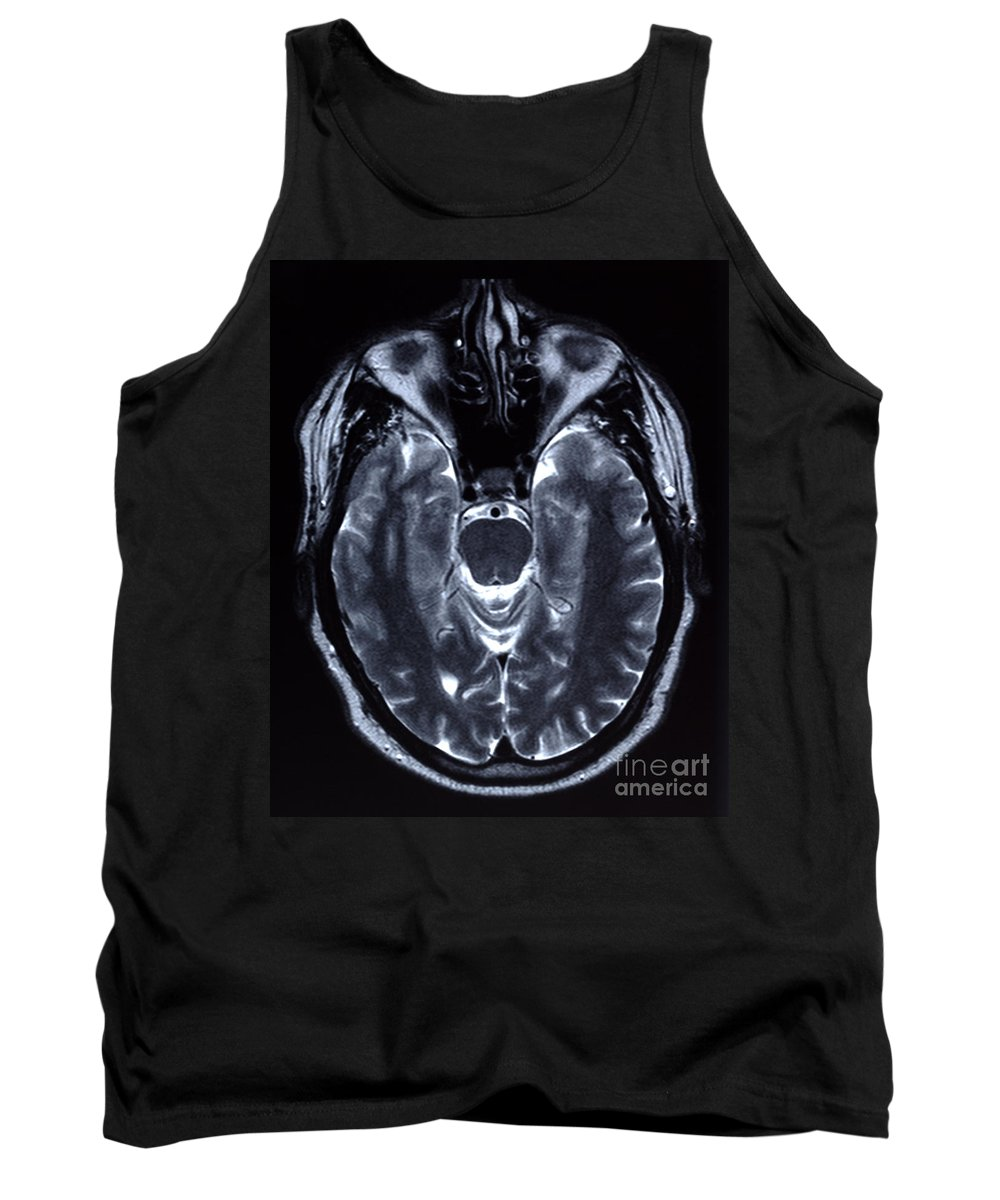 Medical Tank Top featuring the photograph Human Brain by Ted Kinsman