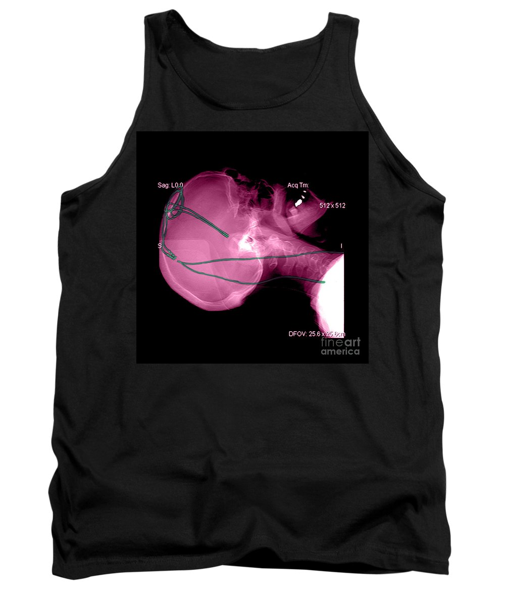 Brain Surgery Tank Top featuring the photograph Lateral X-ray Of Deep Electrodes by Medical Body Scans