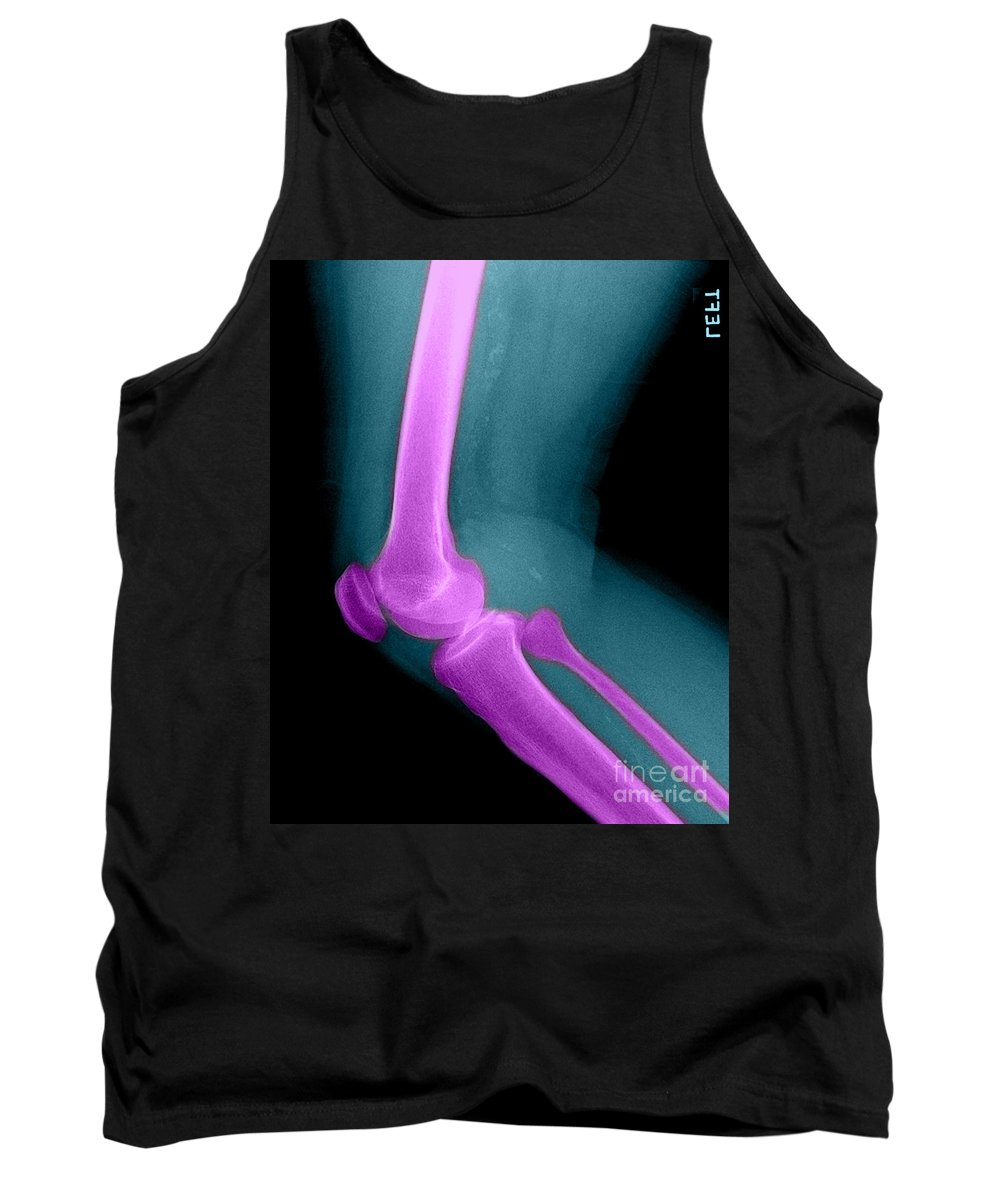 Bone Tank Top featuring the photograph Lateral X-ray Of The Knee by Medical Body Scans