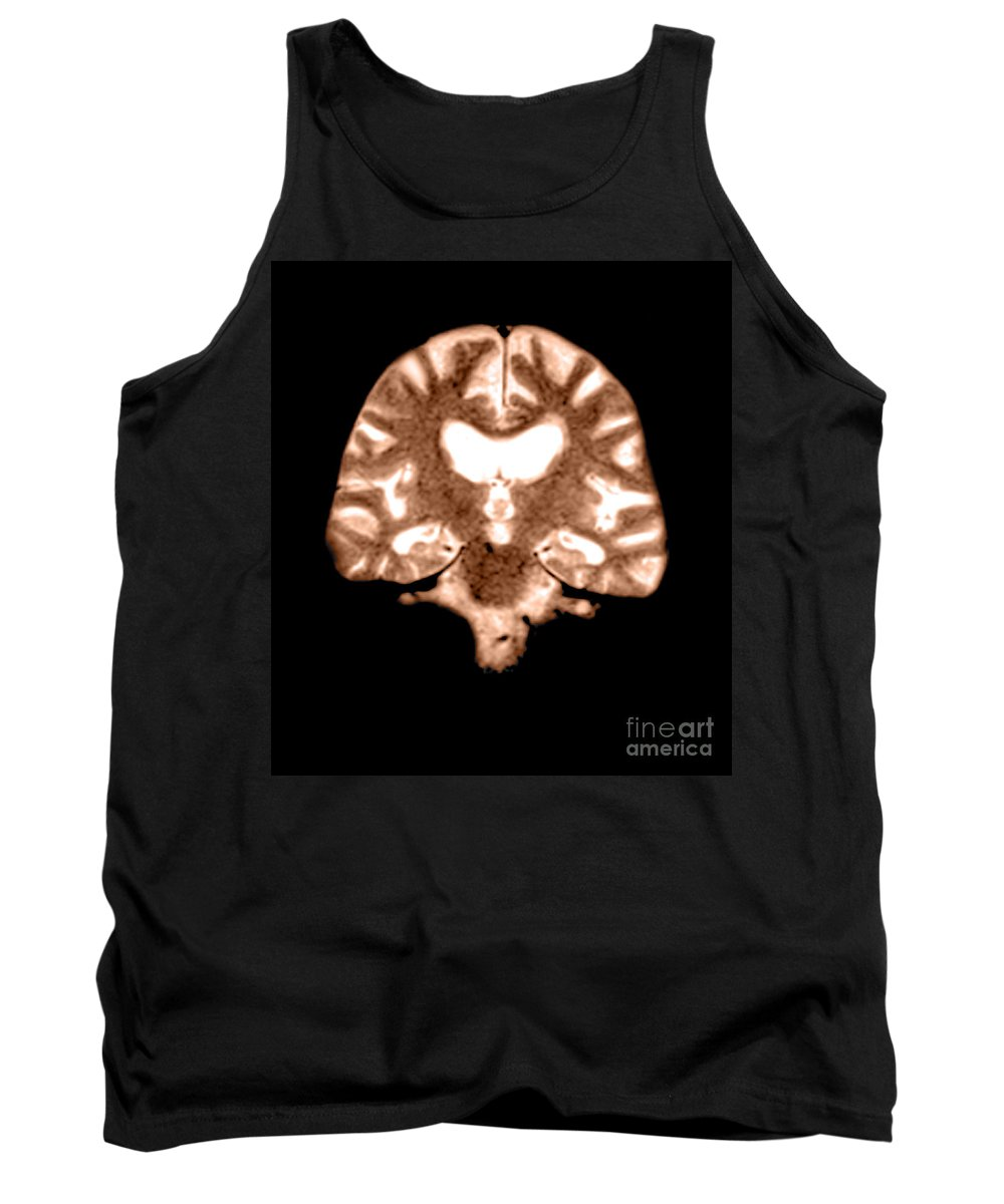 Magnetic Resonance Imaging Tank Top featuring the photograph Mri Of Brain With Alzheimers Disease by Medical Body Scans