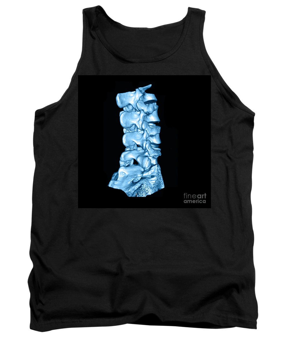 Ct Scan Tank Top featuring the photograph 3d Ct Of Lumbar Spine by Medical Body Scans