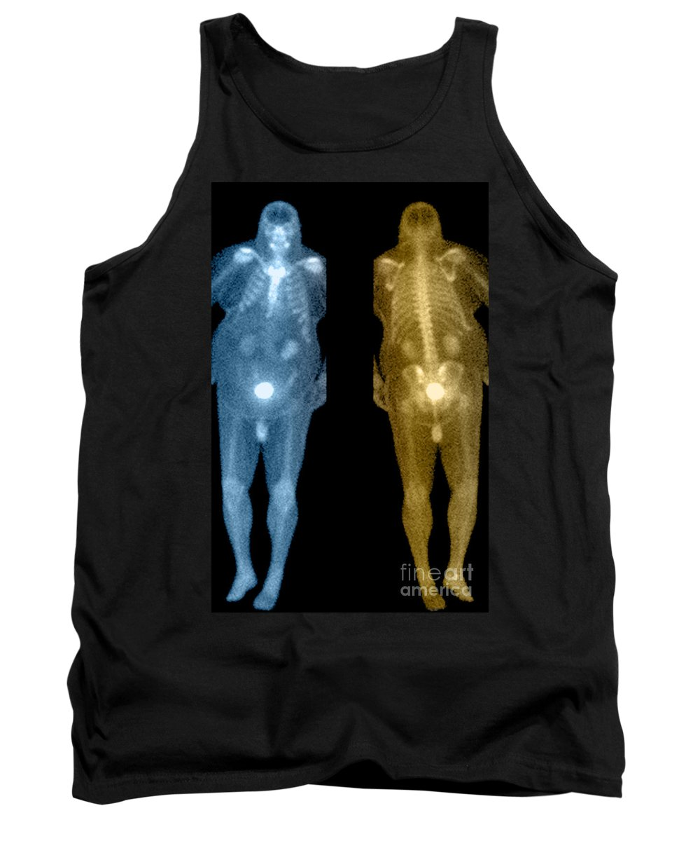 Obese Tank Top featuring the photograph Bone Scan by Medical Body Scans