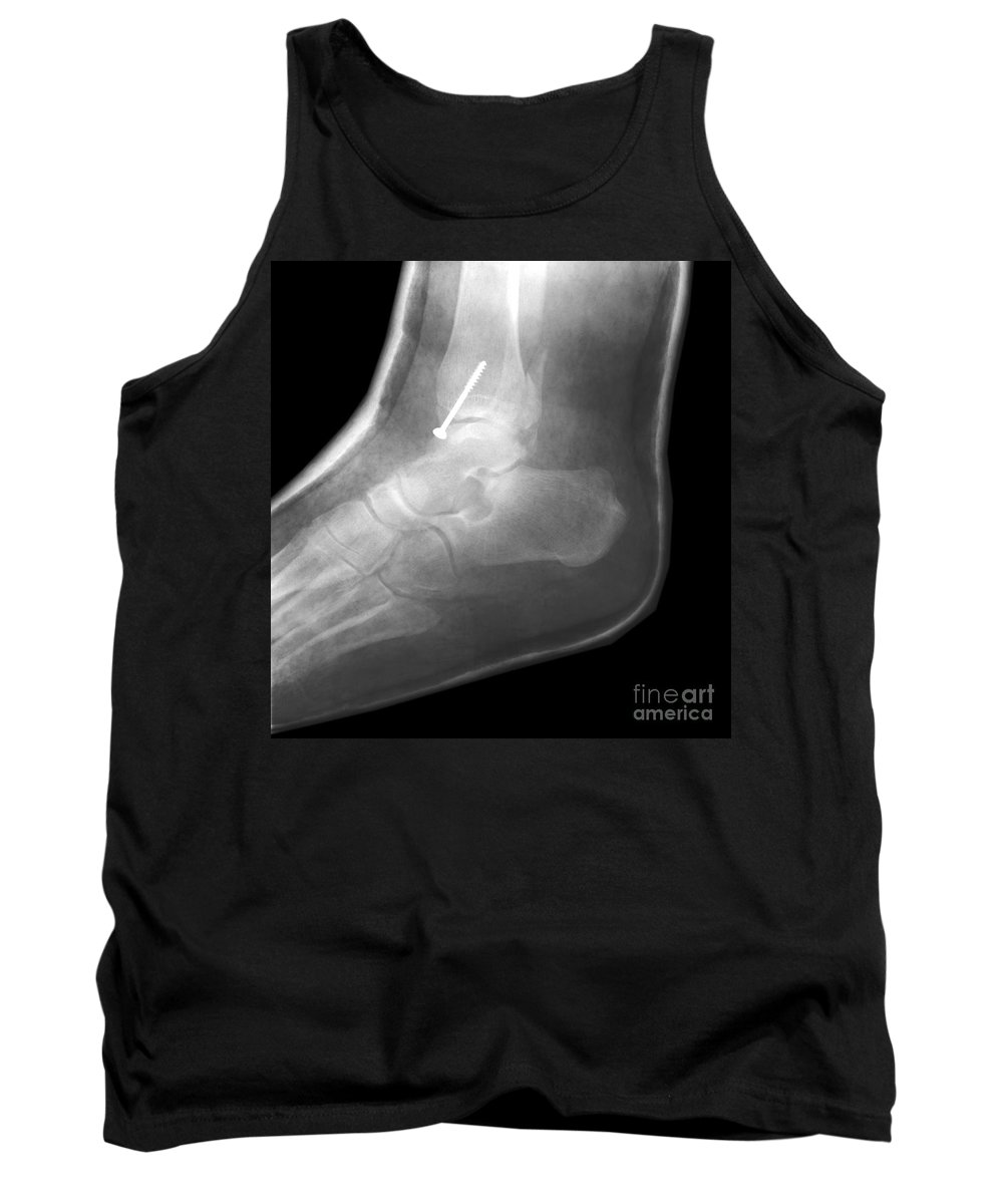 X-ray Tank Top featuring the photograph Broken Ankle by Ted Kinsman