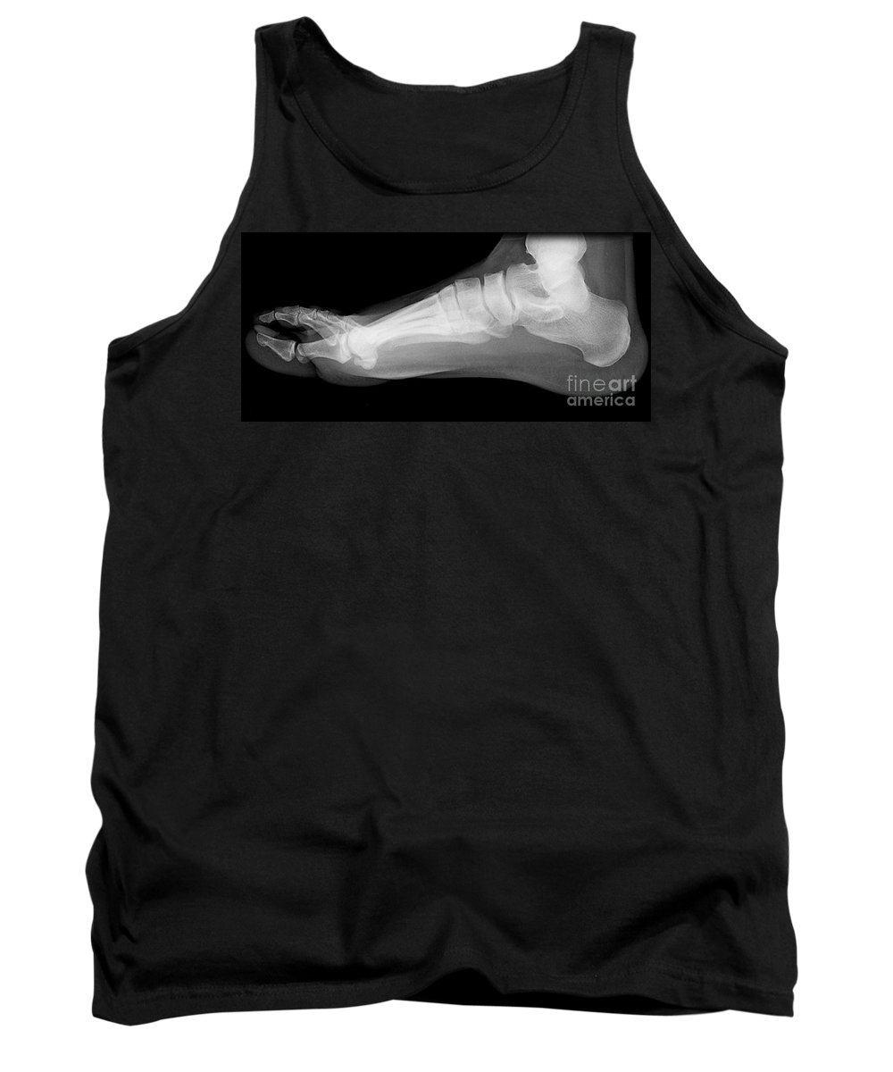 X-ray Tank Top featuring the photograph Flat Foot by Medical Body Scans