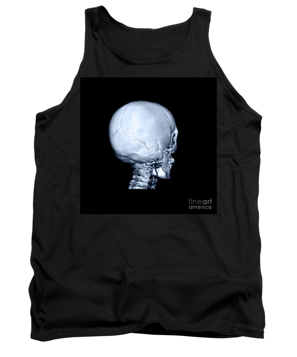 Head Tank Top featuring the photograph Human Skull by Medical Body Scans