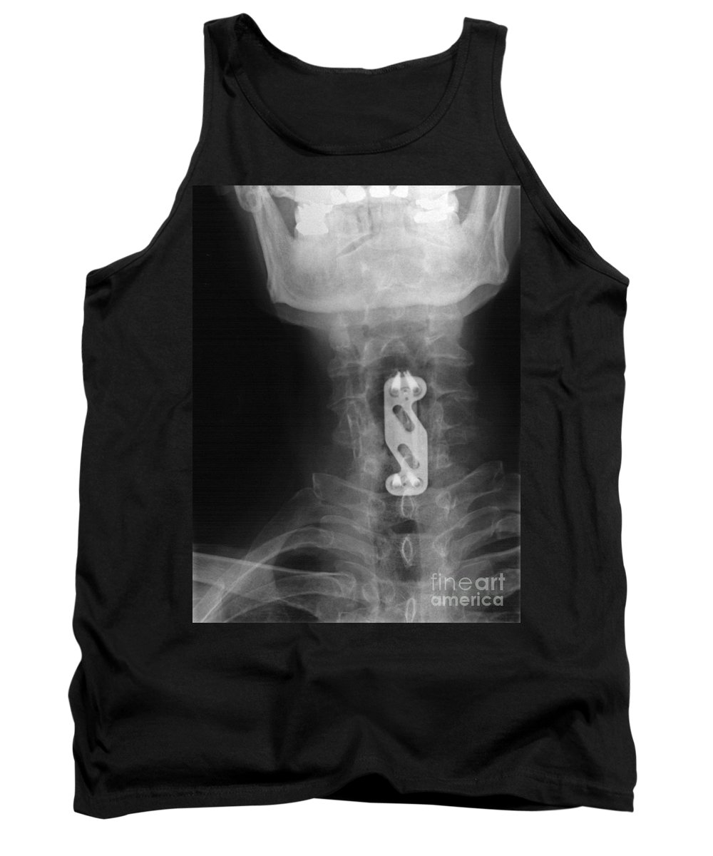 Xray Tank Top featuring the photograph X-ray Of Neck Implant by Ted Kinsman