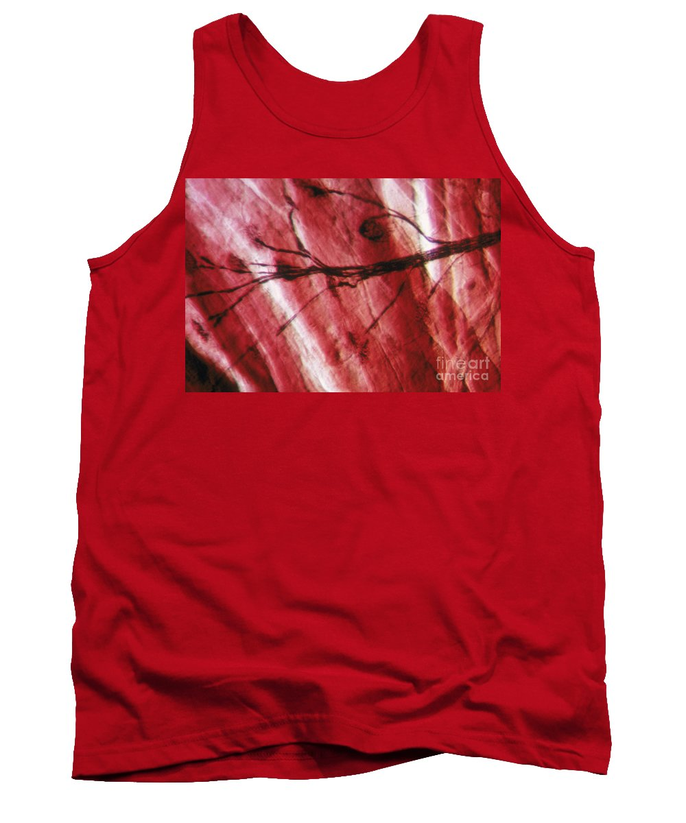 Neurone Tank Top featuring the photograph Motor End Plate by Eric V. Grave