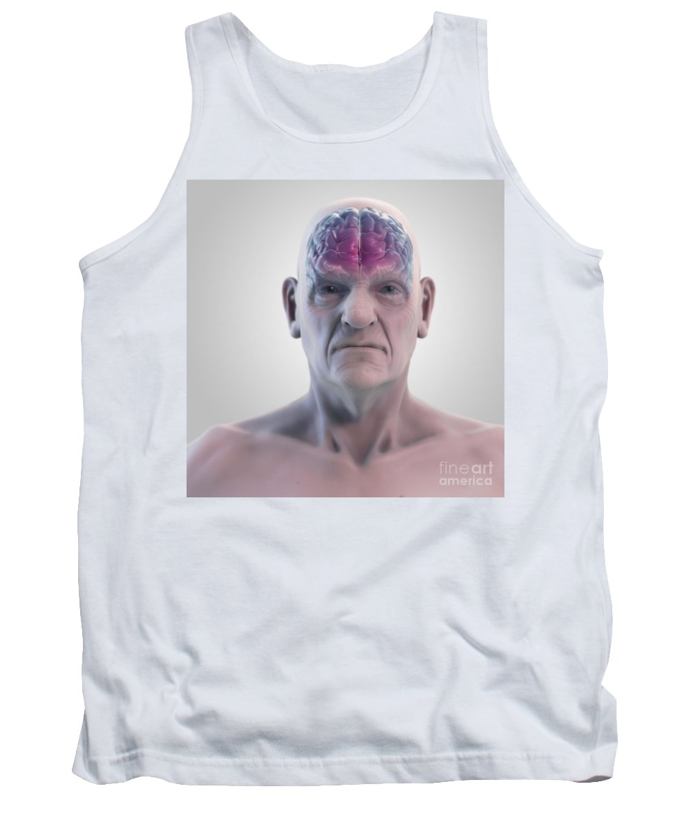 Brain Activity Tank Top featuring the photograph Geriatric Brain by Science Picture Co