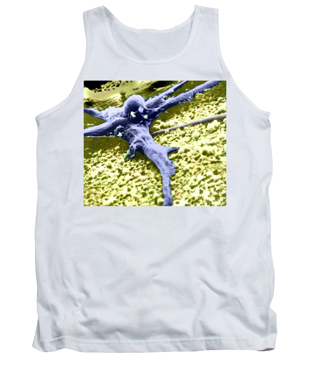 Cancer Tank Top featuring the photograph Malignant Cancer Cell by Omikron