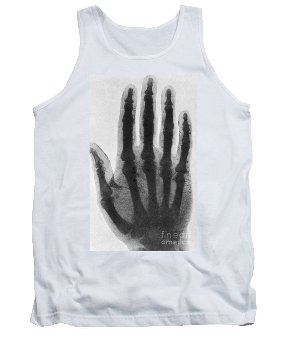 Science Tank Top featuring the photograph Early X-ray, 1897 by Science Source