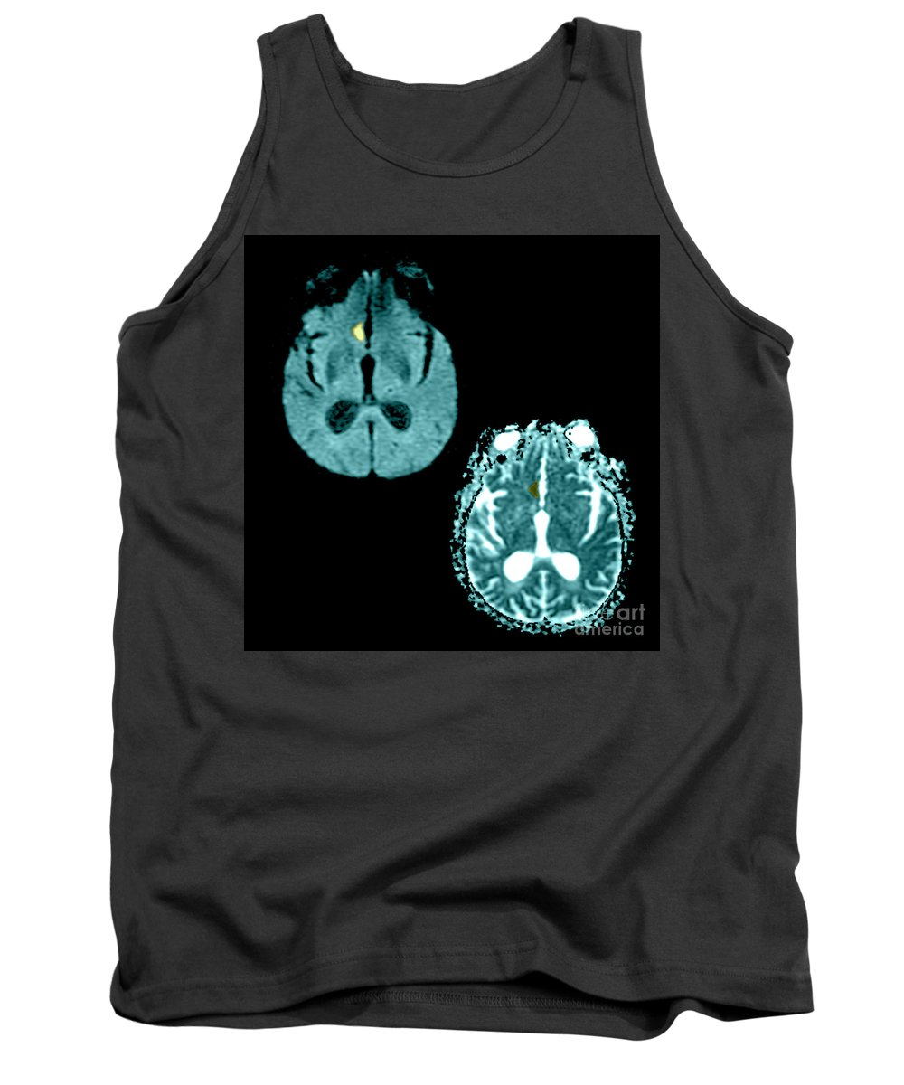 Mri Tank Top featuring the photograph Mri Of Stroke by Medical Body Scans