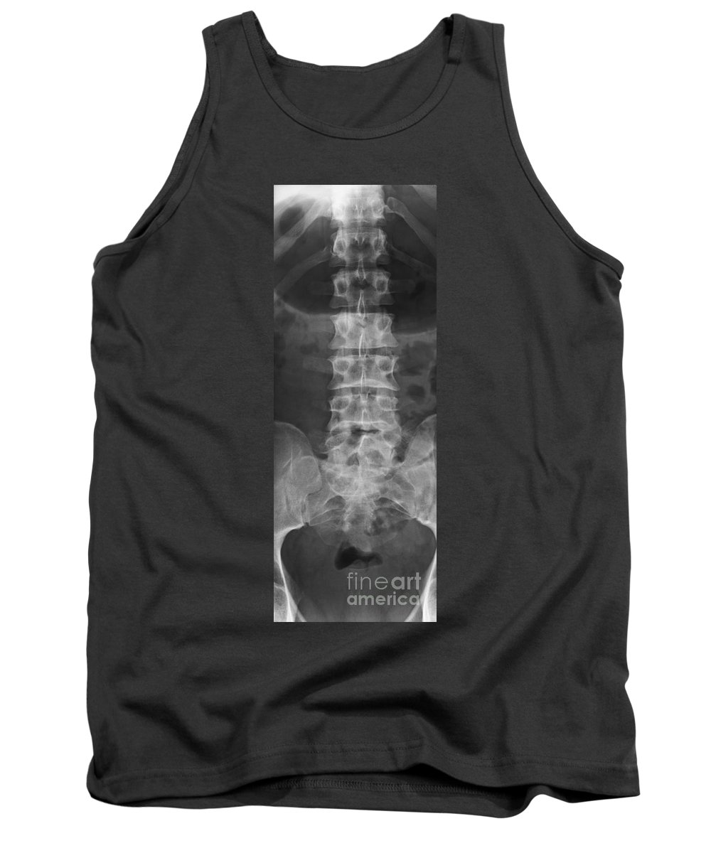 Xray Tank Top featuring the photograph X-ray Of Lower Lumbar Spine by Ted Kinsman