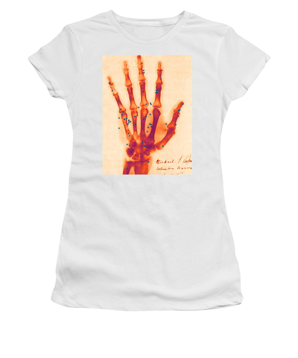Science Women's T-Shirt featuring the photograph X-ray Of Gunshot In The Hand by Science Source
