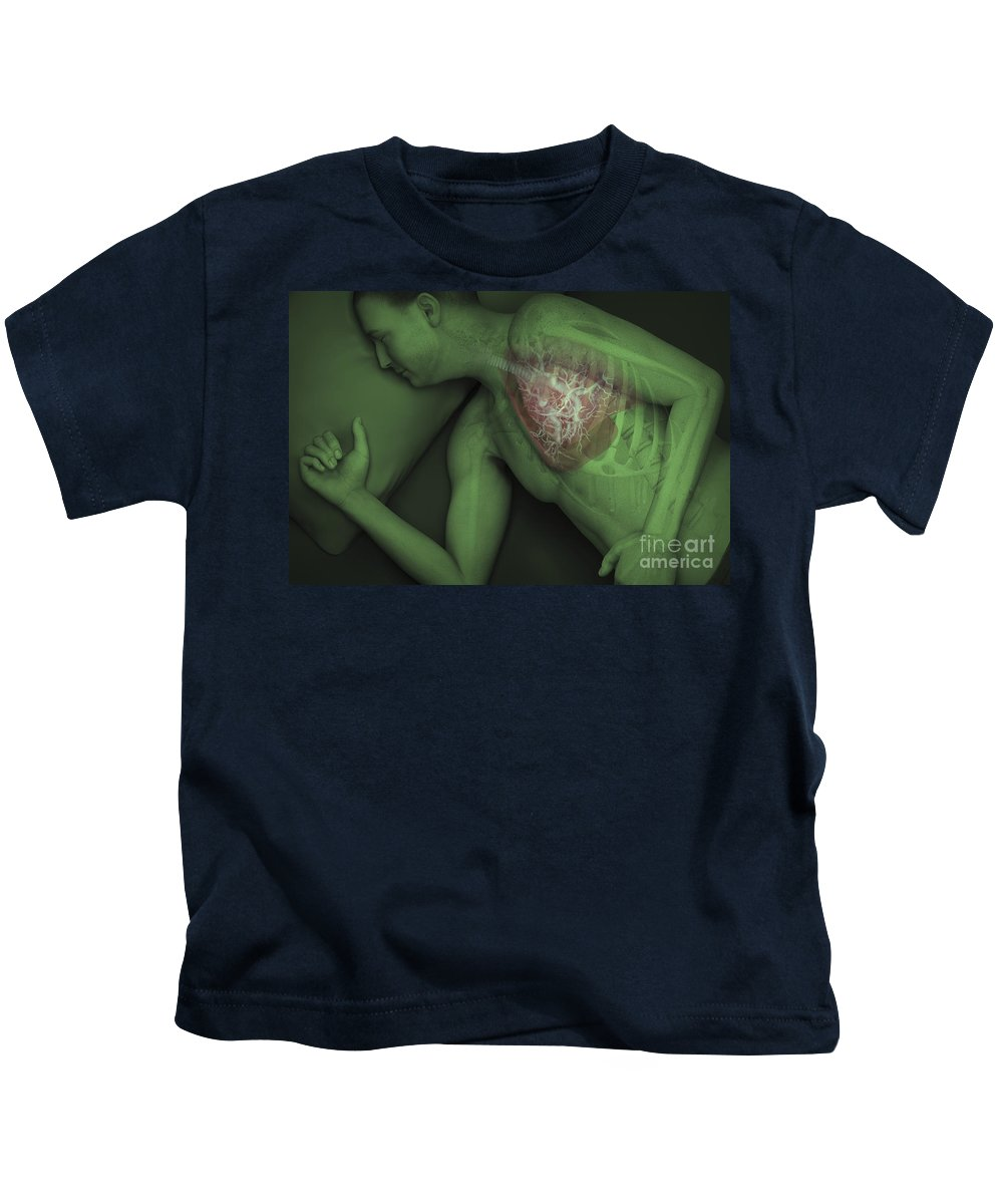 Windpipe Kids T-Shirt featuring the photograph Sleep Apnea by Science Picture Co