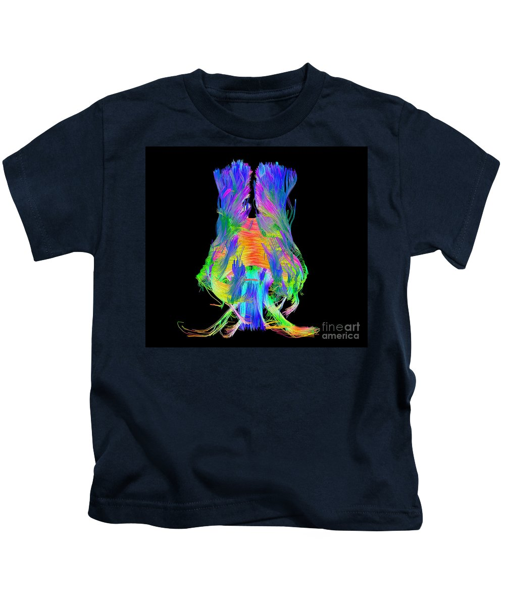 Brain Mri Kids T-Shirt featuring the photograph Brain Fiber Tracts, Dti Scan by Living Art Enterprises