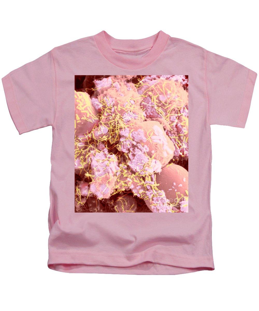 Science Kids T-Shirt featuring the photograph Human Intestinal Mucosa, Sem by Biophoto Associates